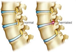 lower back pain herniated disc